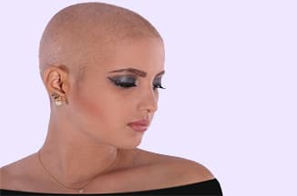 Hair loss in chemotherapy patient