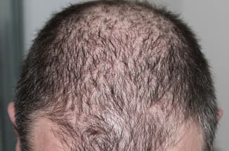 Hair loss in thyroid patient