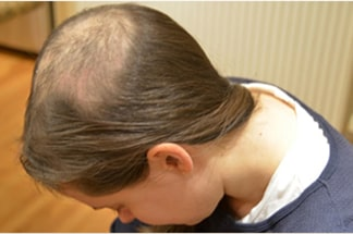 Hair loss due to trichotillomania